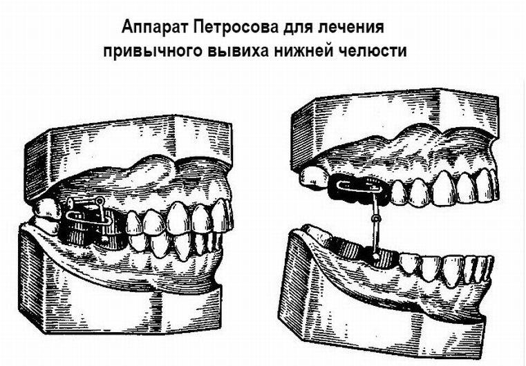 аппарат Петросова
