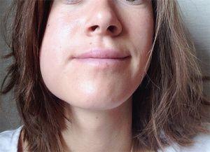 Опухоль щеки после удаления зуба