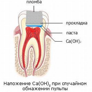 Установка пломбы на зуб