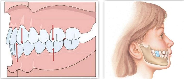 Разрушение зубов вследствие неправильного прикуса