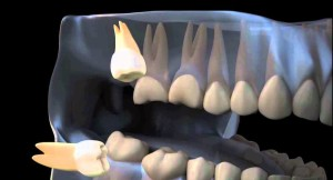 Ретенция зуба мудрости