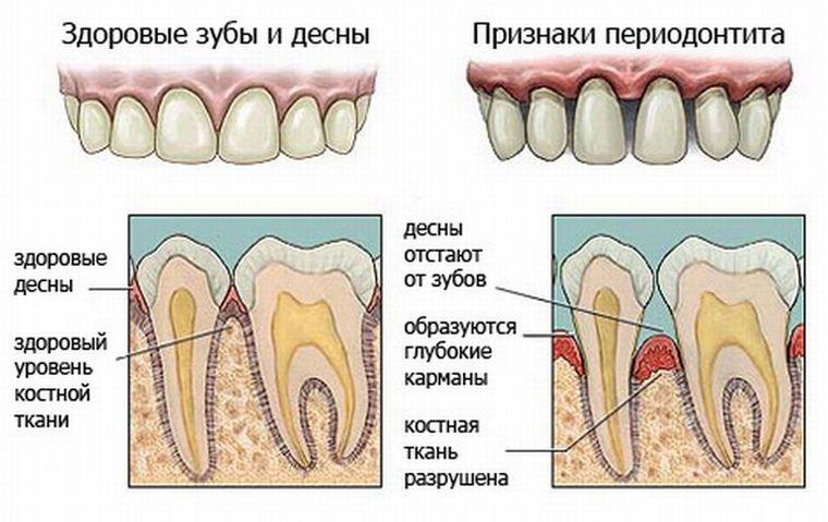 Симптомы апикального периодонтита