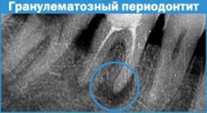 гранулематозный периодонтит на рентгене