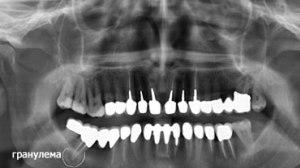 Гранулема на рентгене