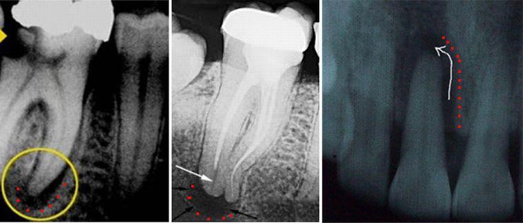 Воспаление периодонта на рентгене