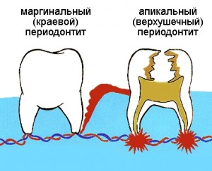 Верхушечный и маргинальный периодонтит