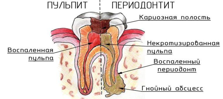 Чем пульпит отличается от периодонтита