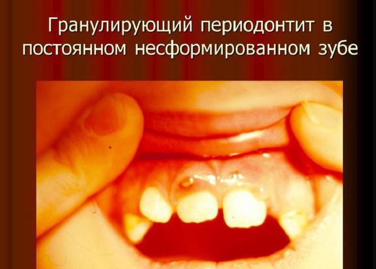 Гранулирующий периодонтит на не сформированном зуба
