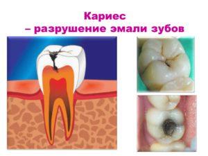 Кариес - последствия зубной бляшки