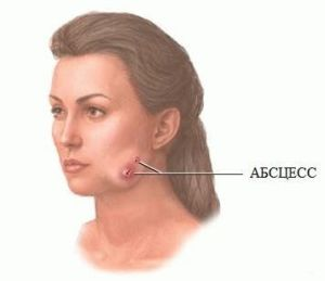 Абсцесс мягких тканей лица