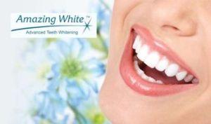 Белые зубки у девушки