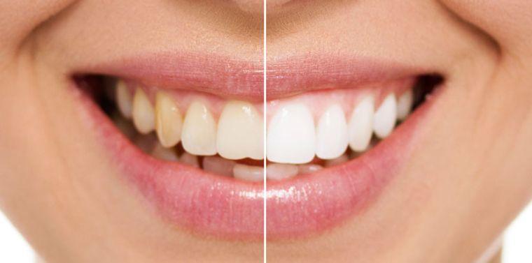Желтые и белые зубы
