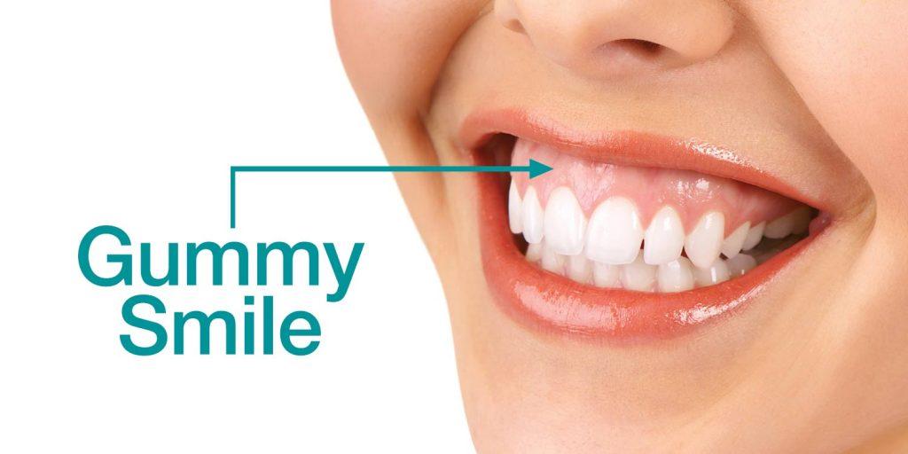 Гингивальная улыбка