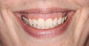 Короткая нижняя губа
