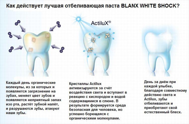 Как работает технология ActiluX
