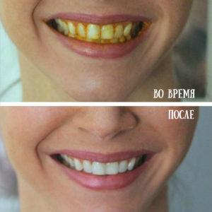 Отбеливание зубов куркумой