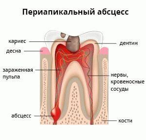 периапикальный абсцесс