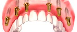 Вживленные дентальные имплантаты