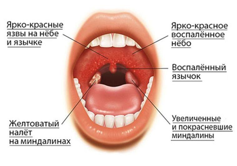 Первые проявления гингивостоматита