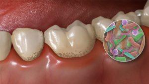 Формирование зубного налетв