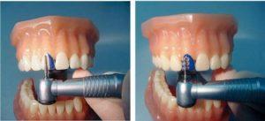 Препаровка зубов
