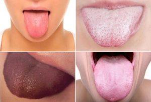Каким может быть цвет языка