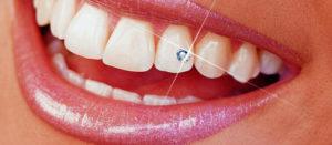 Стразик на зубе