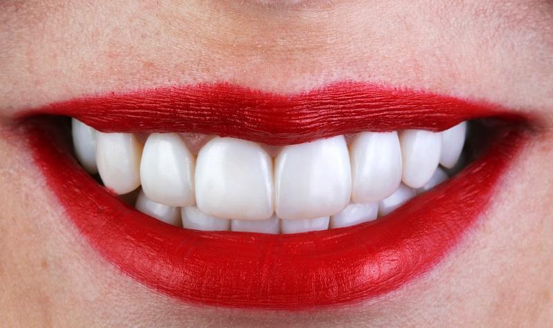 Осветленные зубы