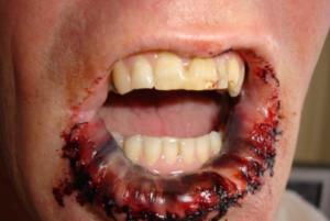 4 стадия рака губы