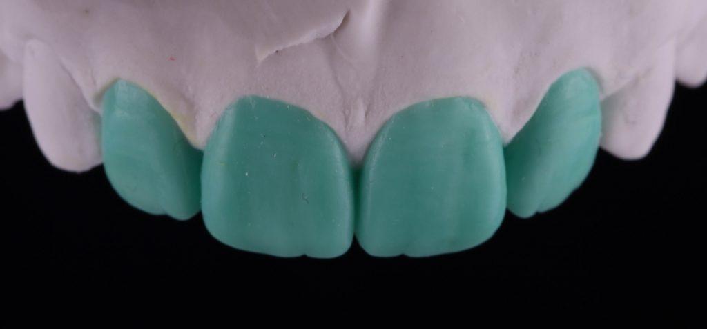 Восковые зубы