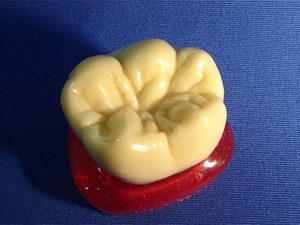 Восковый зуб