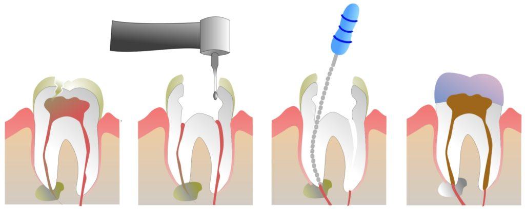Распломбирование канала зуба