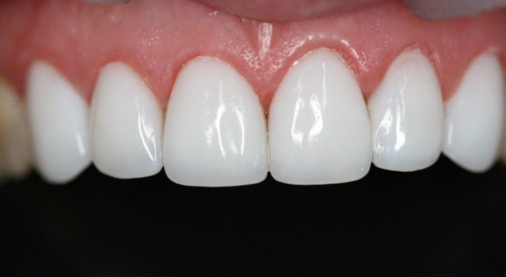 композитное отбеливание зубов