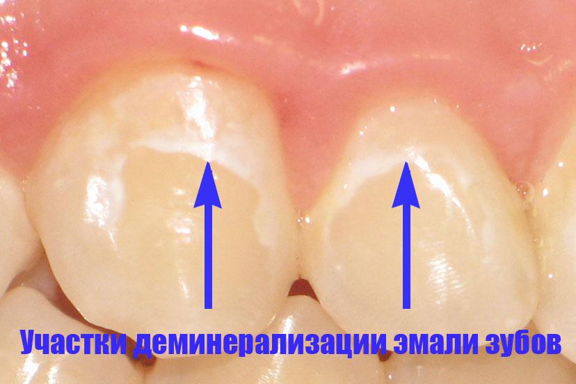 Деминерализация эмали