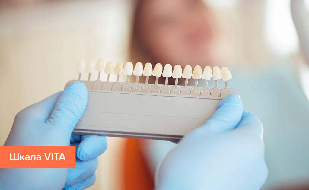 Шкала оттенков зубов