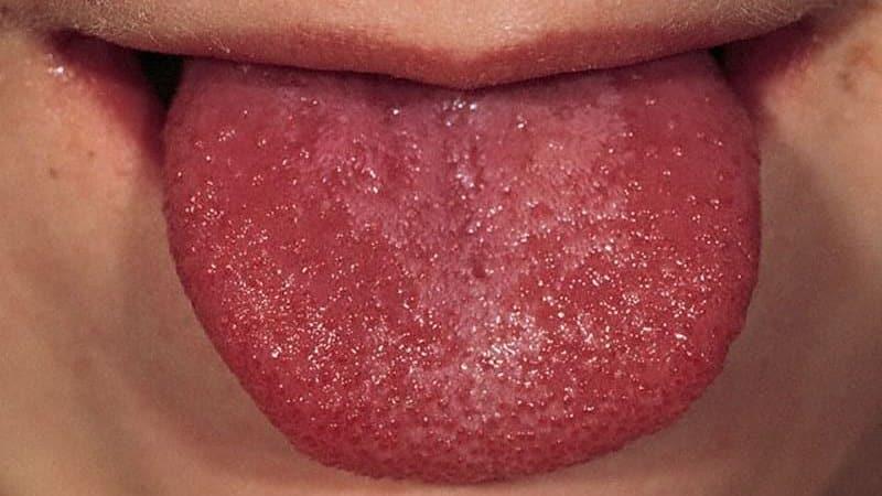 Красный язык у ребенка