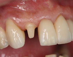 Обточенный зуб