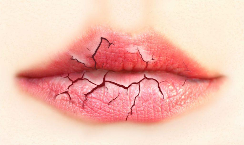 Потресканные губы