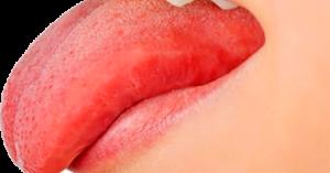 Красный язык