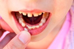 Детская меланодентия