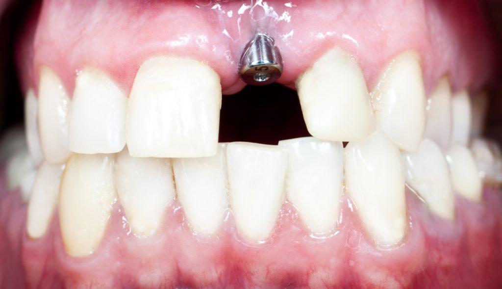 Имплант переднего зуба