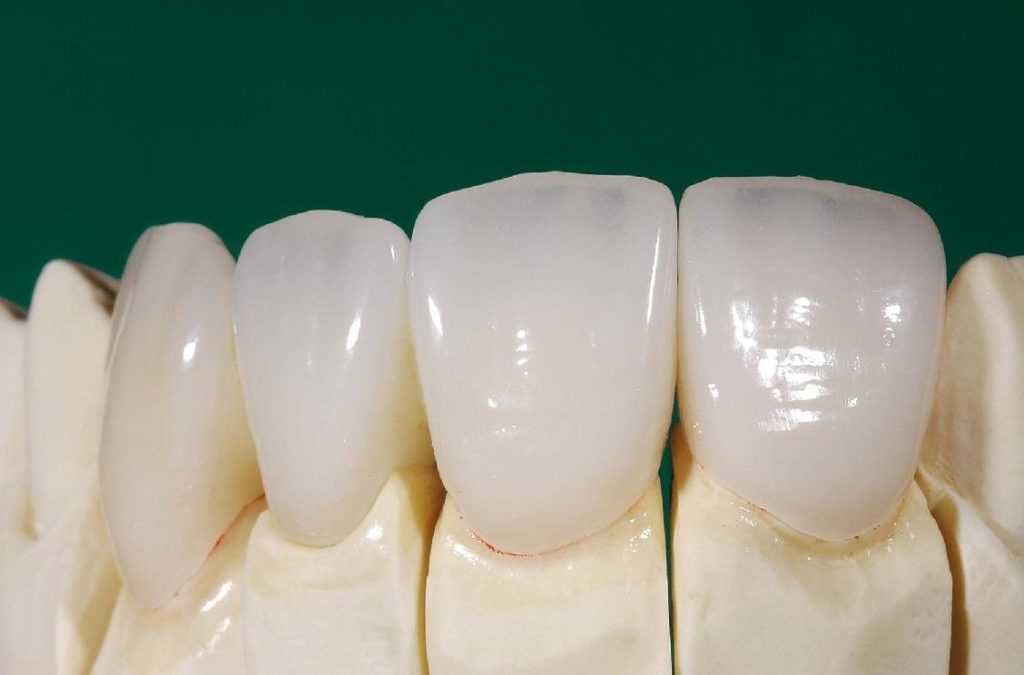 Зубы из фарфора