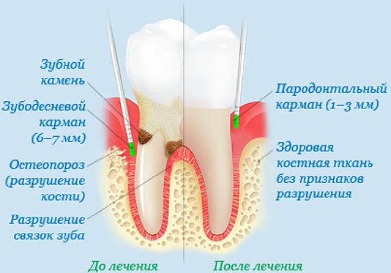 Лечение пародонтоза
