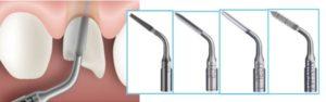 Ультразвуковое удаление зуба