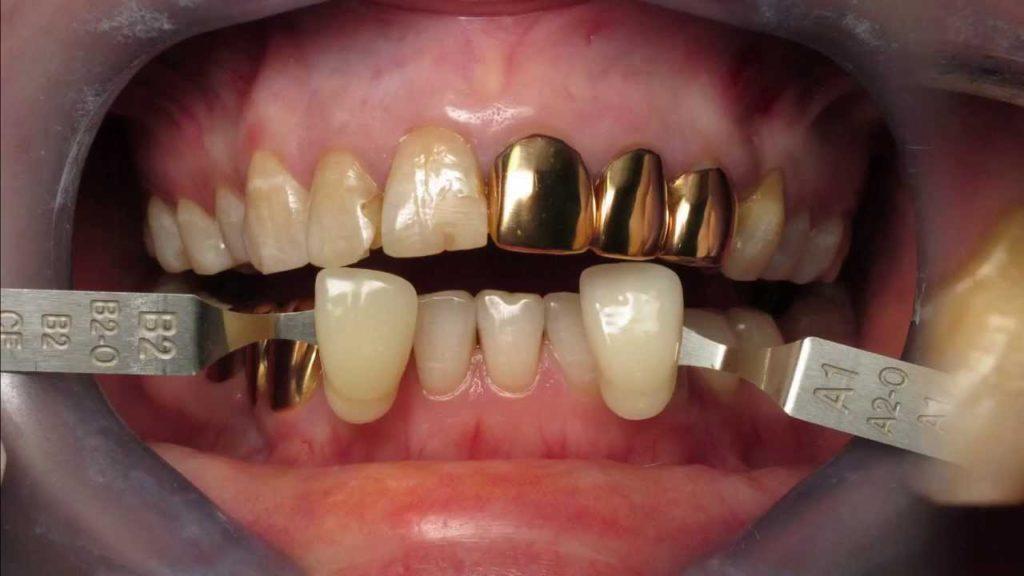 Альтернатива золотым коронкам