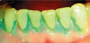 Оценка гигиены полости рта