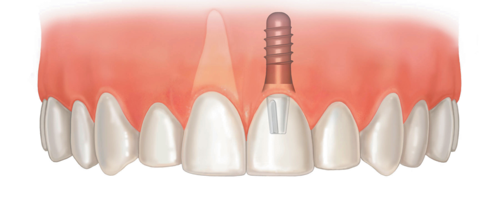 Имплант переднего верхнего зуба