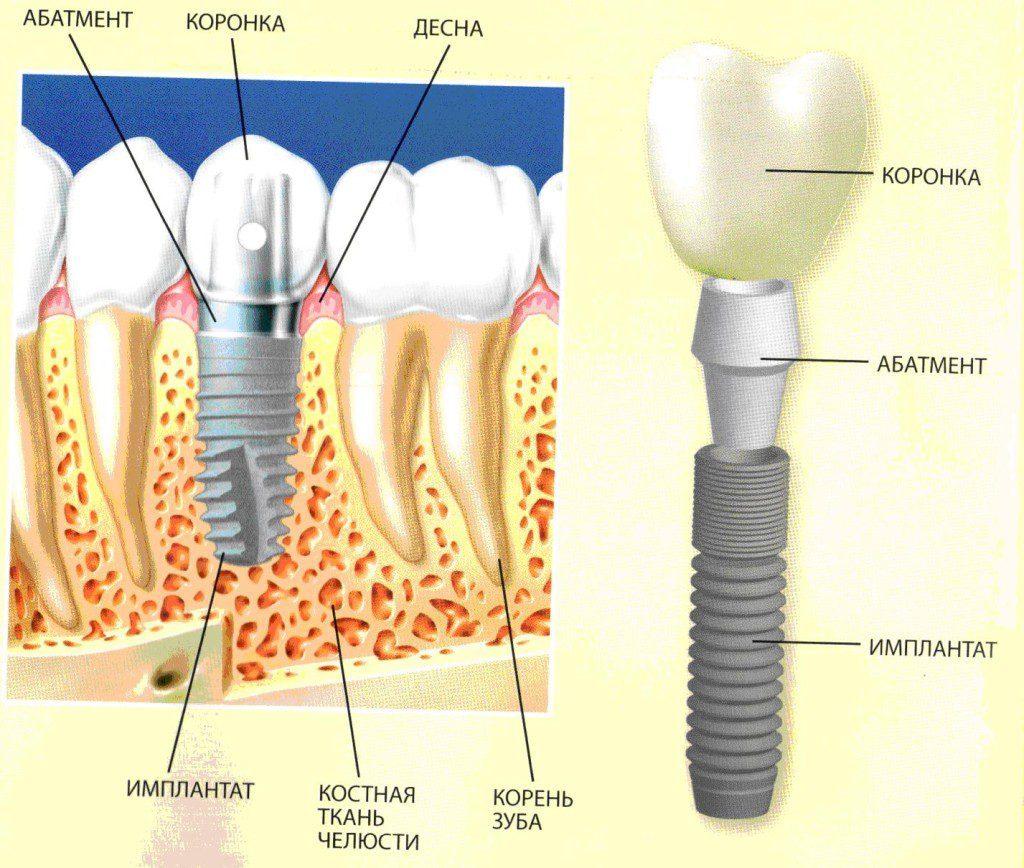 Установка коронки на имплант