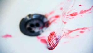 Кровь после чистки зубов