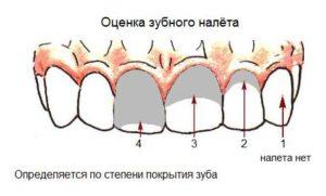 Оценка зубного налета